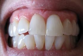 домашно лечение на зъбобол