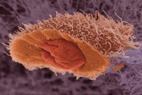 Злокачествен тумор или злокачествено заболяване е името на една голяма група от заболявания, ключова характеристика на които е наличието на анормални клетки, които делят неконтролируемо и развиват в други органи и тъкани.