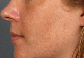 маска за кафяви петна по лицето