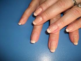 гъбички по ноктите на ръцете лечение