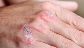 Лечение на псориазис с билки
