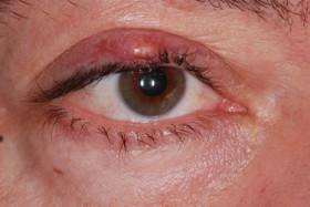 Вътрешен ечемик на окото
