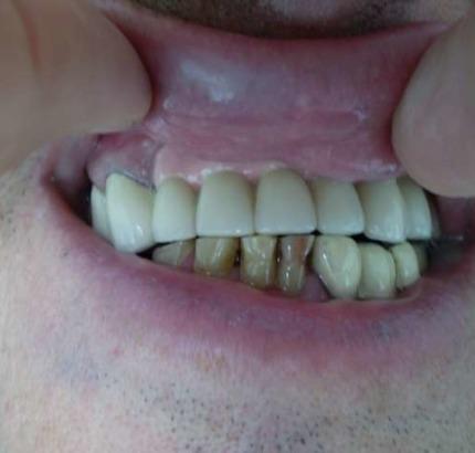 Киста на зъб