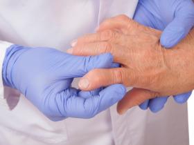 артрит-симптоми