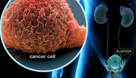 рак на пикочния мехур