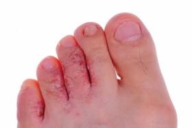 Гъбички по кожата