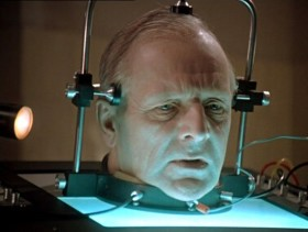 трансплантация на глава
