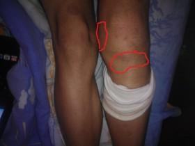 Подуто коляно