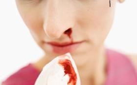 кръвотечение от носа