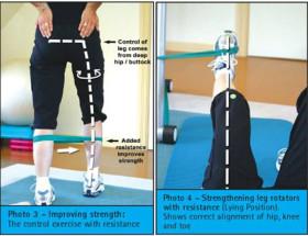Счупена капачка на коляното
