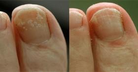 Нишадър лекува гъбички по ноктите