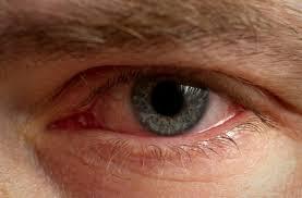 зачервени очи