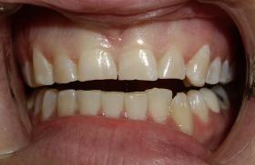 Основни причини за скърцане със зъби