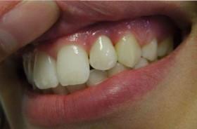 Смрадлика при болен зъб