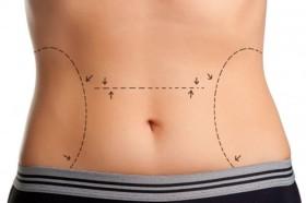Абдоминопластика и липосукция на жени как се правят?